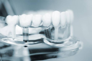 model of dental implant