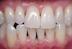 patient 1 teeth whitening after
