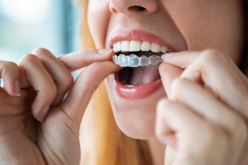 Patient putting in new Invisalign trays